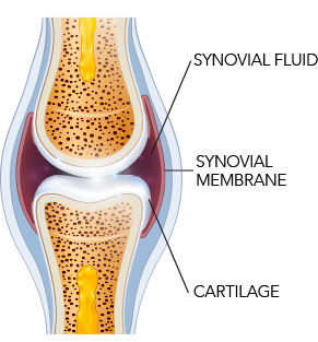 Diagram of synovial fluid, synovial membrane, and cartilage in a joint