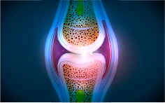 Visualization of joint inflammation